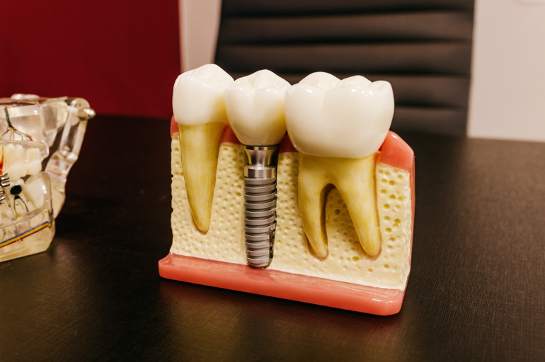 Dental Implants: The Treatment You Need For Achieving A Natural Looking Smile